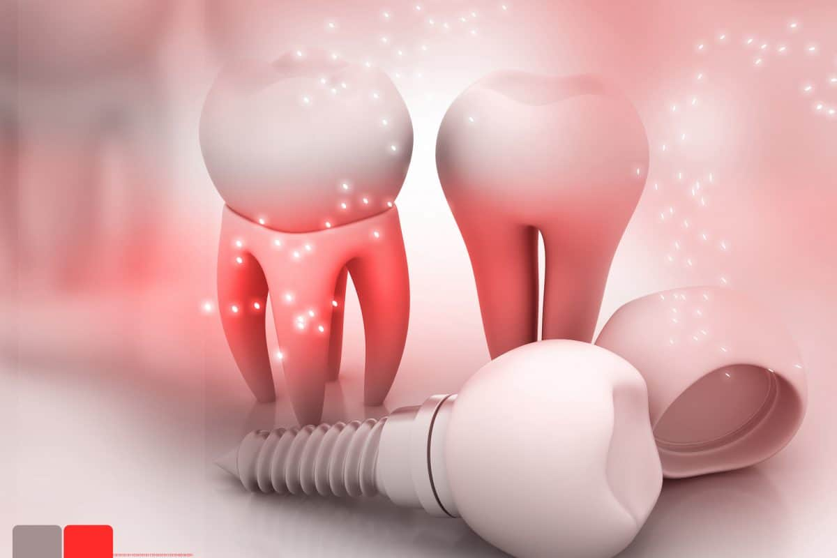 How To Make Your Dental Implants More Affordable