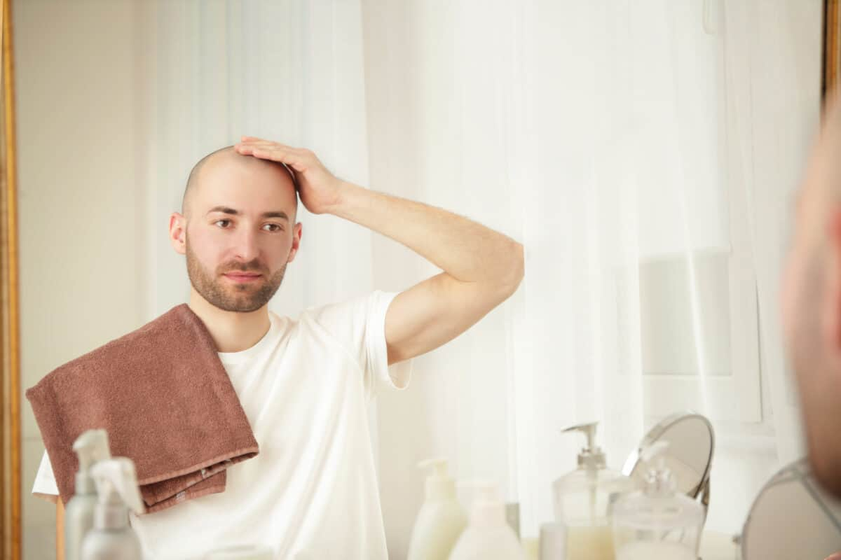 6 Reasons to Choose FUE Hair Transplant Surgery