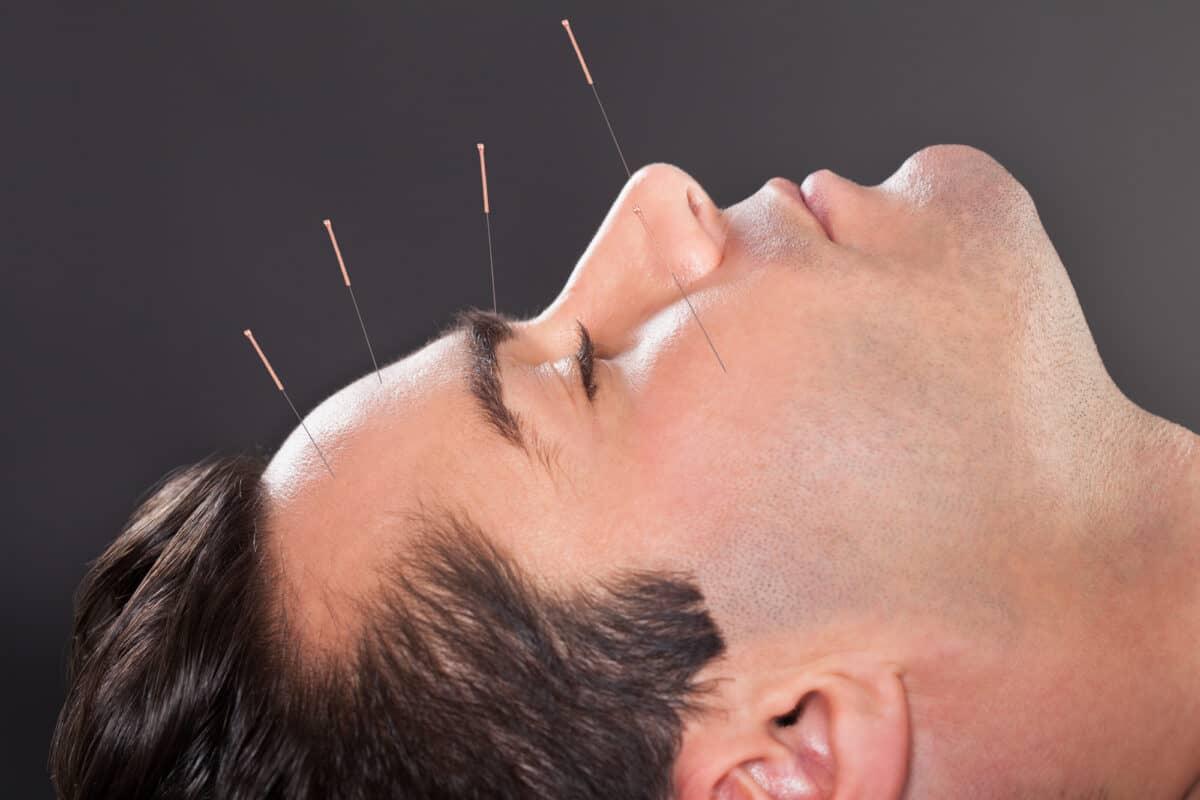 Understanding Acupuncture Myths