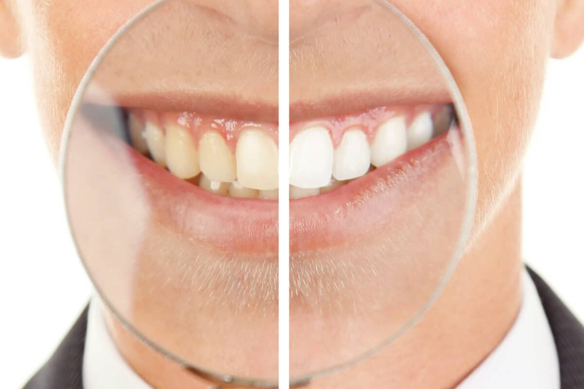 Does Zoom Teeth Whitening Work?