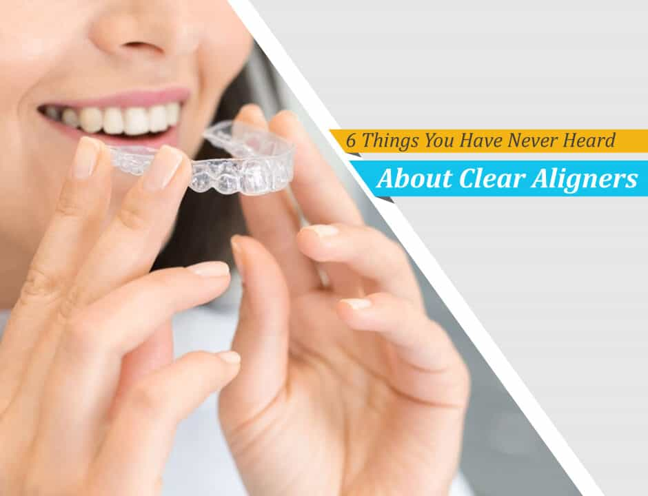 https://digitalhealthbuzz.com/wp-content/uploads/2021/02/6-Things-You-Have-Never-Heard-About-Clear-Aligners-940x720.jpg