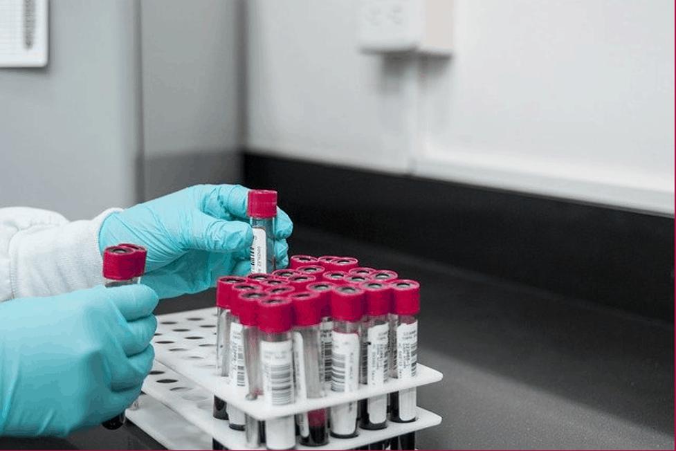 https://digitalhealthbuzz.com/wp-content/uploads/2021/03/blood-testing.png