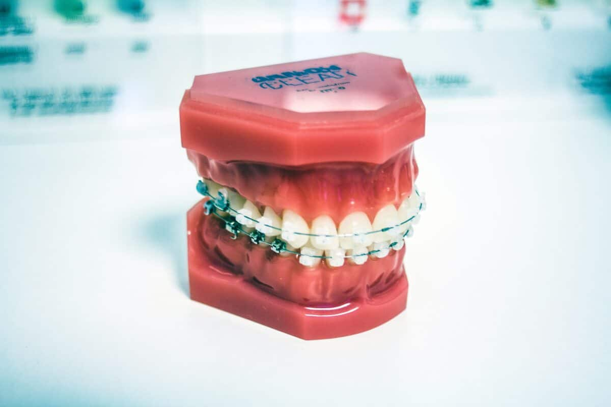 How Do Orthodontists Put on Braces?