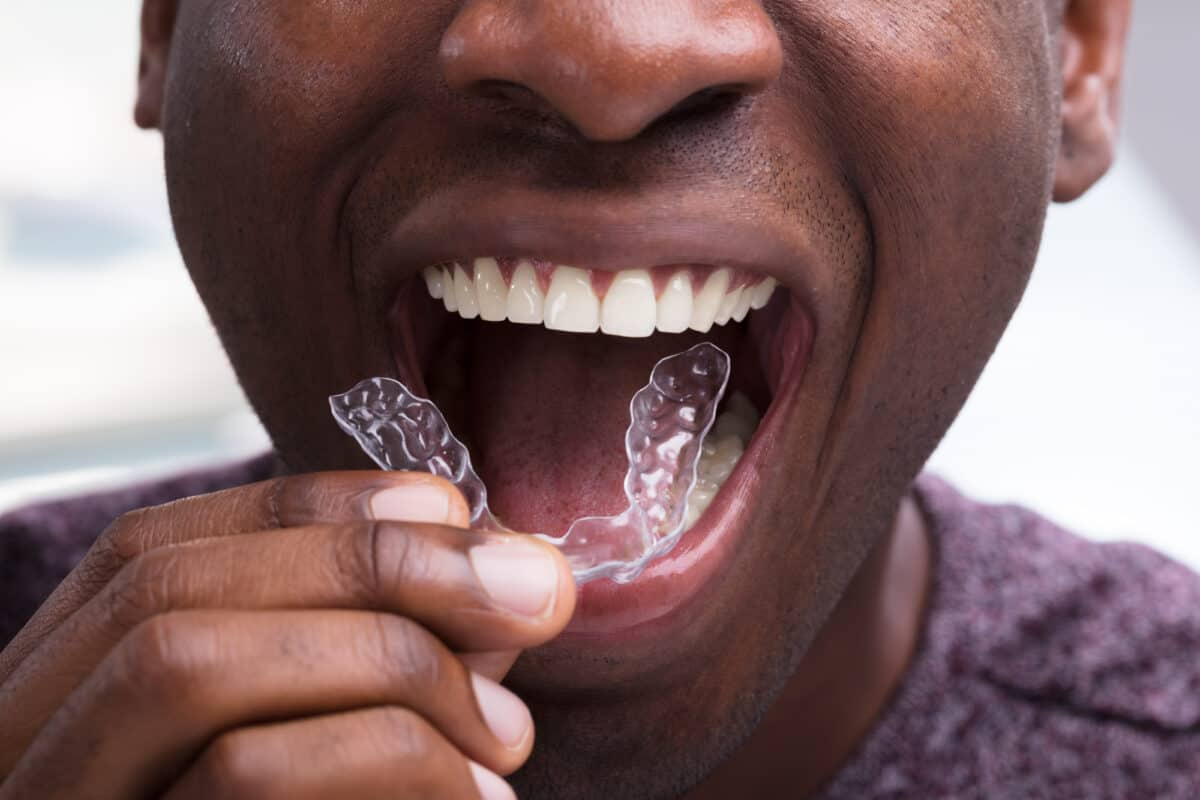 How Clear Aligners Are The Pathway To A Perfect Smile