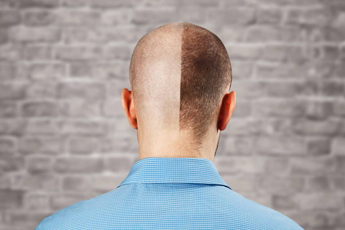 Stem Cell Hair Transplants: What You Need to Know